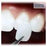 carillas y ortodoncia