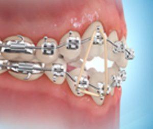 elásticos-ortodoncia