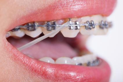 El Por Qué De Los Elásticos Durante El Tratamiento De Ortodoncia