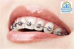 Cuidado de los dientes y encías durante el tratamiento de ortodoncia