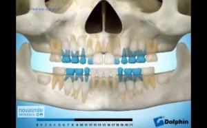 salida dientes