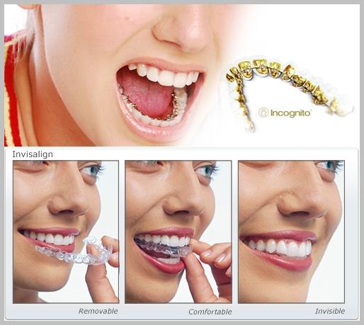 Resultado de imagen para Tipos De Ortodoncias Invisibles