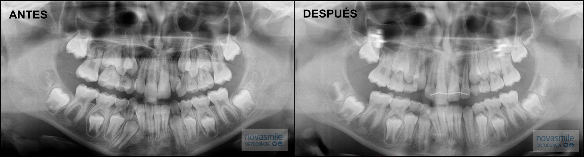 Radiografías Antes y Después 1ª Fase