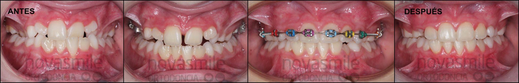 Fotos Centrales Antes y Después Tratamiento 1ª Fase