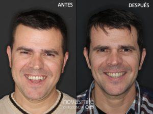mejora sonrisa mordida abierta