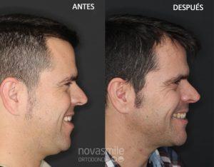 mejora perfil facial