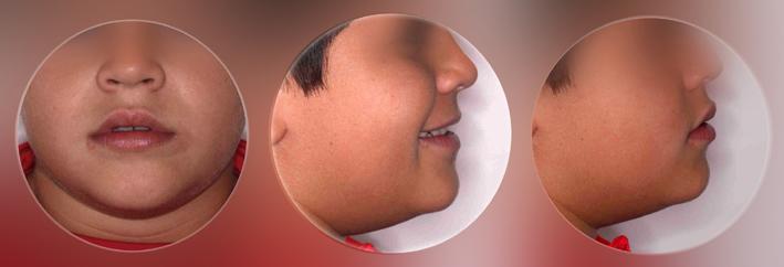 después-tratamiento-ortodoncia