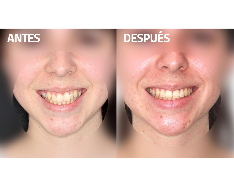 antes y después ortodoncia novasmile