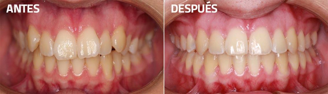 corrección-mordida-ortodoncia