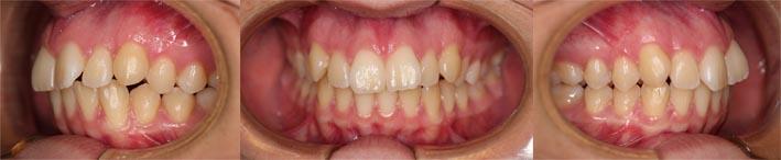ortodoncia con extracciones