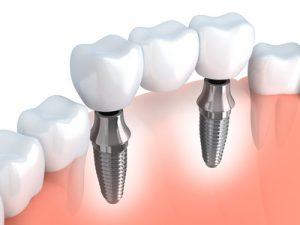 corona-ortodoncia
